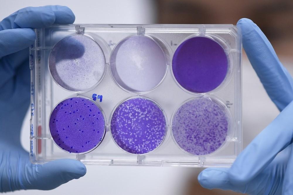 Brasil tem quase 200 voluntários dispostos a se infectar com coronavírus em possíveis testes de vacina